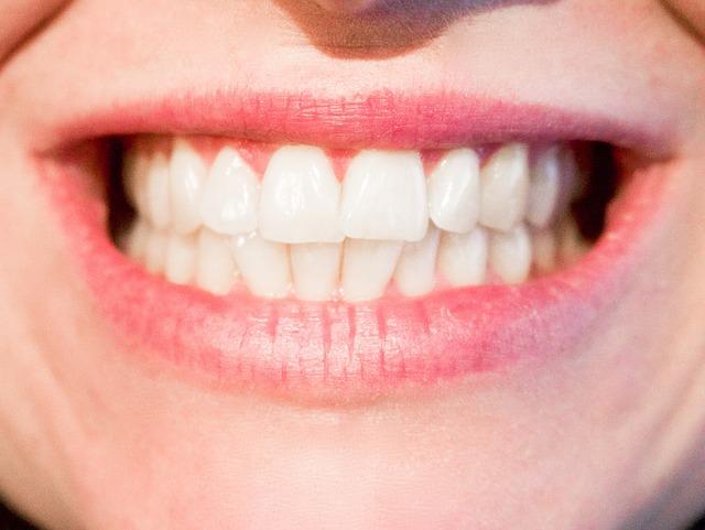 l'occlusion dentaire déficiente est lla base de nombreuses pathologies